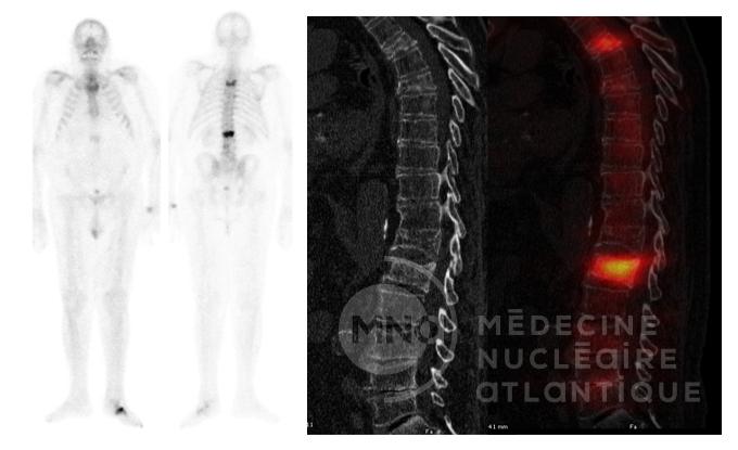cas clinique scintigraphie - Médecine Nucléaire Atlantique