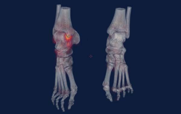 scintigraphie osseuse - Médecine Nucléaire Atlantique