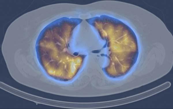 scintigraphie pulmonaire - Médecine Nucléaire Atlantique