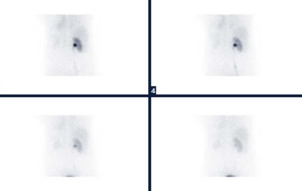 scintigraphie renale - Médecine Nucléaire Atlantique