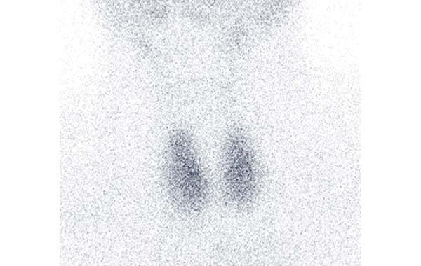 scintigraphie thyroidienne - Médecine Nucléaire Atlantique