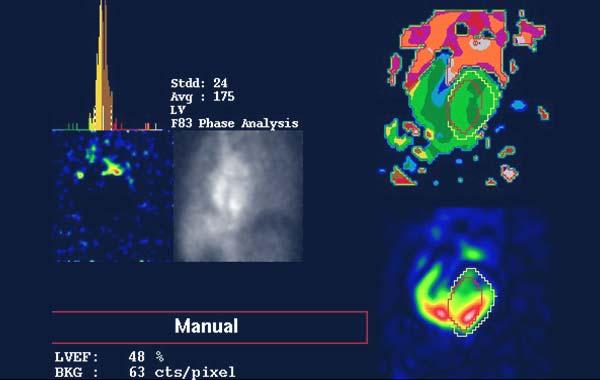 scintigraphie ventricule - Médecine Nucléaire Atlantique